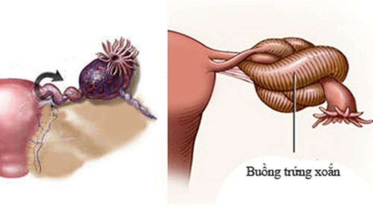 U nang buồng trứng bị xoắn