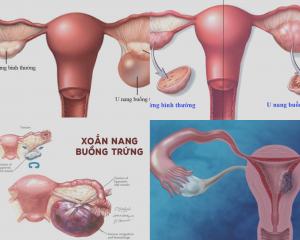 U nang buồng trứng khi mang thai
