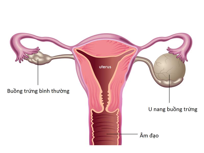 U nang buồng trứng và nguyên nhân