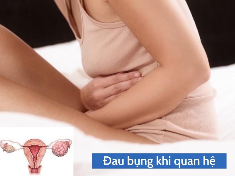Đau bụng khi quan hệ là dấu hiệu của u nang buồng trứng ác tính
