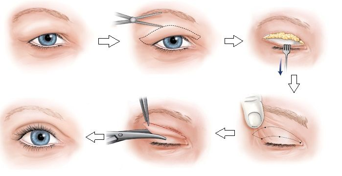 tiểu phẫu hút mỡ thừa mí mắt