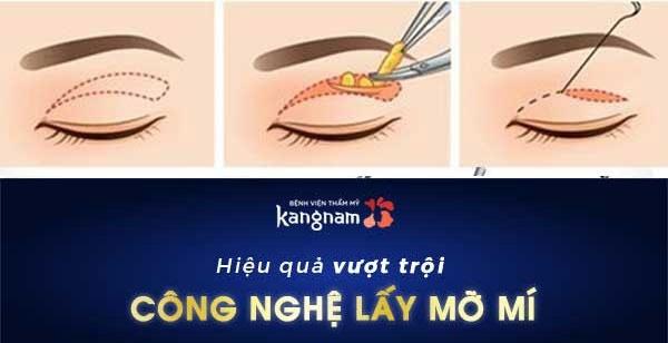 hút mỡ thừa mí mắt 1
