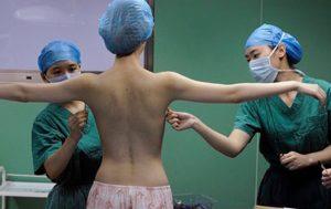Người phẫu thuật chuyển giới